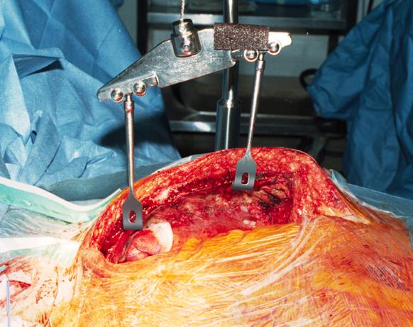 Sternal Rake Plates